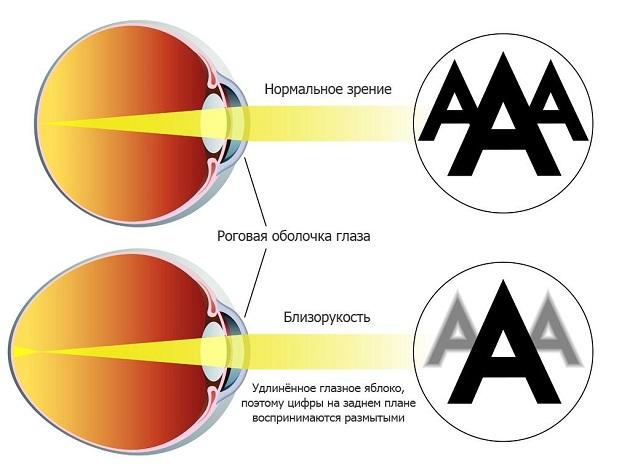 Зарядка для глаз эффективная с улучшением зрения