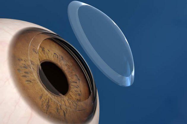 Кератопластика - операция на глазах, в ходе которой проишодит пересадка роговицы