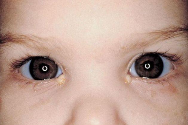 Конъюнктивит у детей