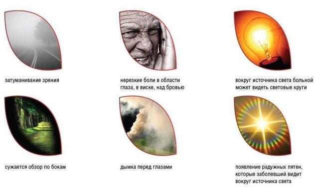 симптомы приступа глаукомы