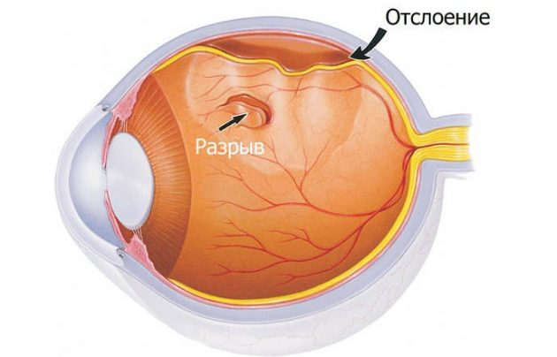 Отслоение и разрыв сетчакти глаза