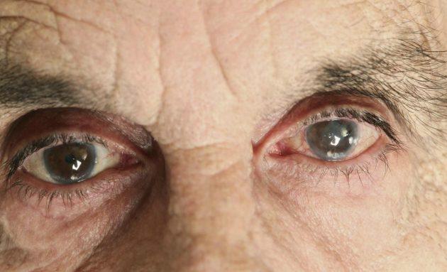В большинстве случаев речь идет о возрастной катаракте