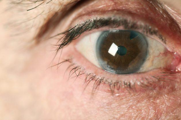 Глаукома нередко диагностируется слишком поздно