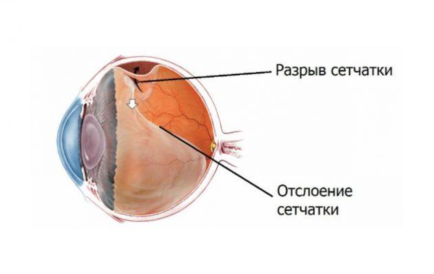 Коагуляция сетчатки проводится при разрывах и отслойках