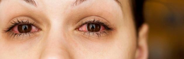 ацикловир глазная мазь и красные глаза