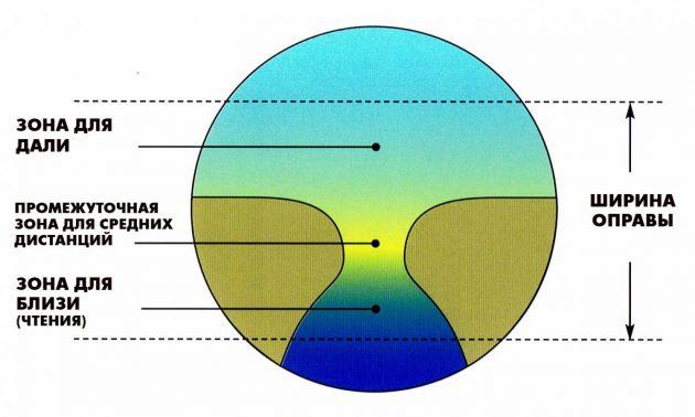 Операция по улучшению зрения какая лучше