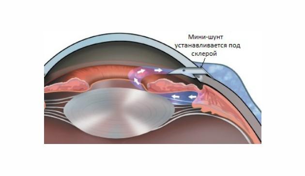 Этот вид операции при глаукоме позволяет обеспечить отток внутриглазной жидкости