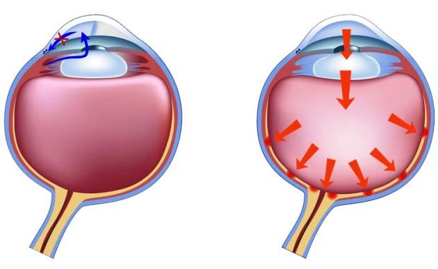 глаукома стадии лечение