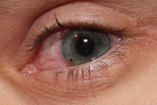 инородное тело в глазу- причина возникновения блефароспазма
