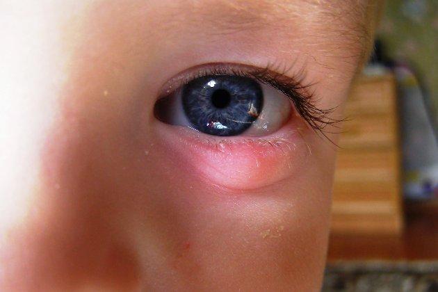 покраснение и припухлость на веке - основные симптомы ячменя у ребенка