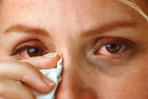 аллергический иридоциклит