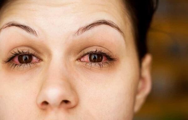 Болят глаза и температура при конъюнктивите