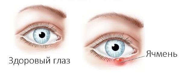 Больно моргать одним глазом из-за ячменя