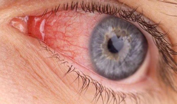 при конъюнктивите глаза болят и чешутся