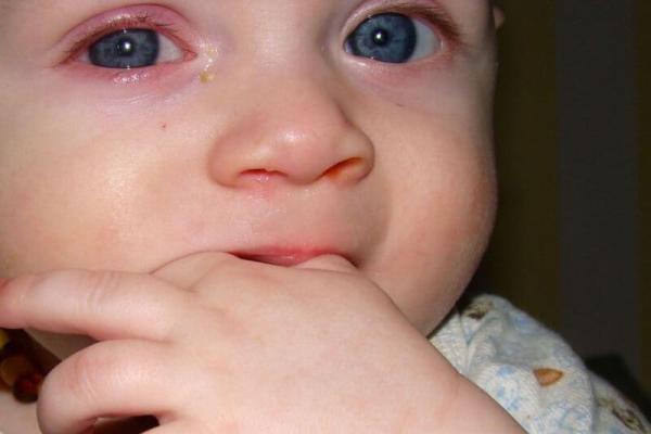 гноятся глаза у ребенка по причине аллергии