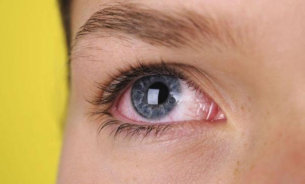 покраснение глаз - побочный эффект капель рибофлавин