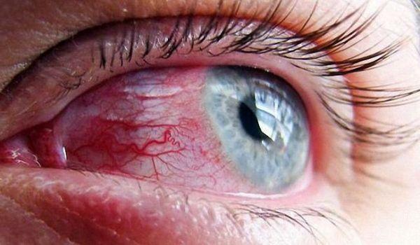 глаза слезятся и красные