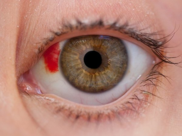 глазная травма