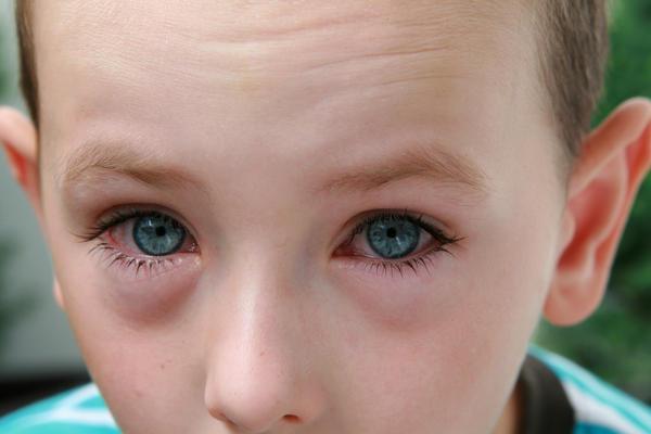 у ребенка отекают глаза