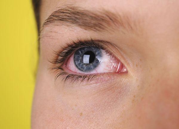 при применении капель офтаквикс возможно покраснение глаза
