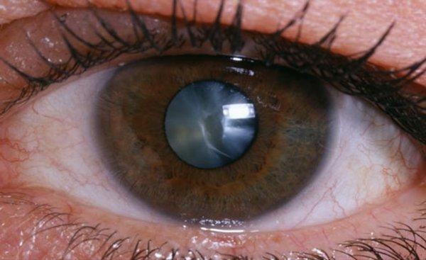 окувайт применяют для профилактики и лечения катаракты