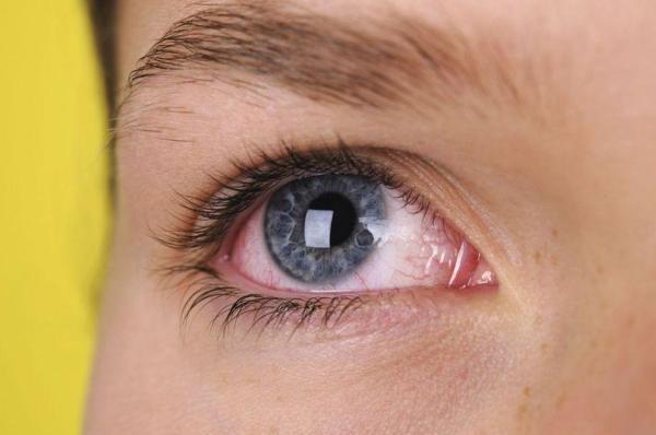 покраснение конъюнктивы - побочный эффект искуственной слезы