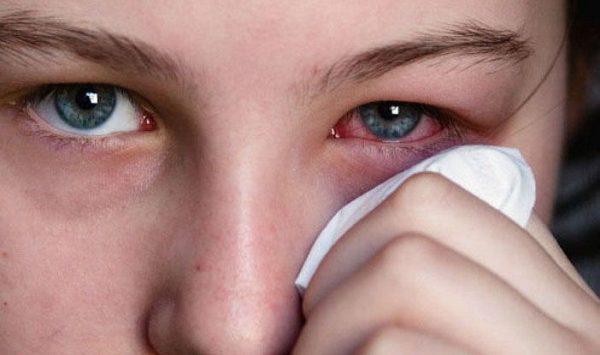 отек век и покраснение конъюнктивы - побочные эффекты капель мидриацил