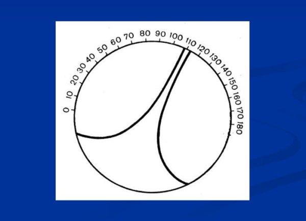 тест на астигматизм (фигура раубичека)