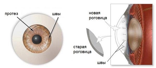 Пересадка роговицы